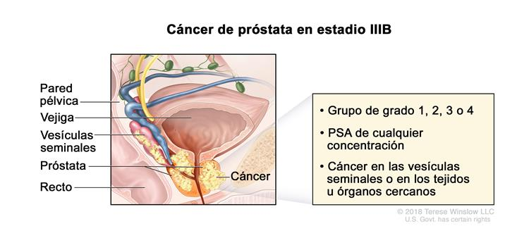 cancer de prostata nivel 4)