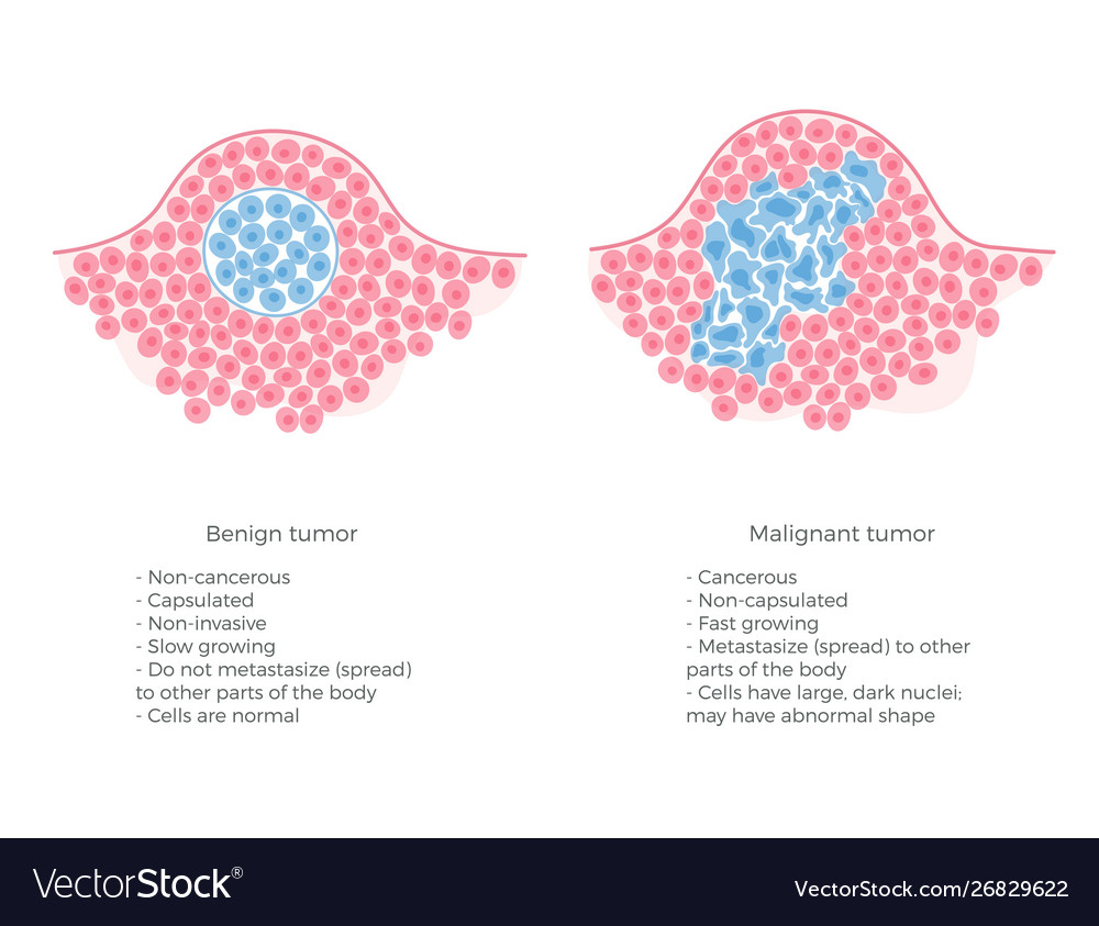 cancer benign and malignant cells