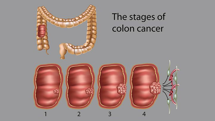 metastatic cancer of the colon survival rate