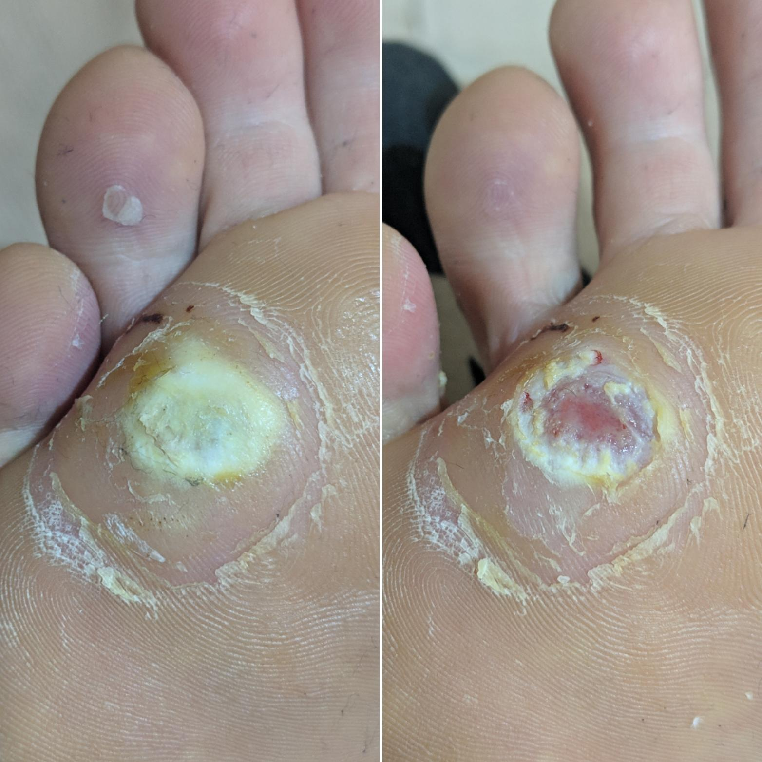 wart treatment with cantharidin