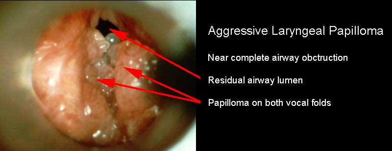 laryngeal papilloma prevalence