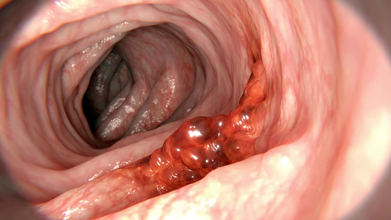 Hpv and colon polyps - eng2ro.ro