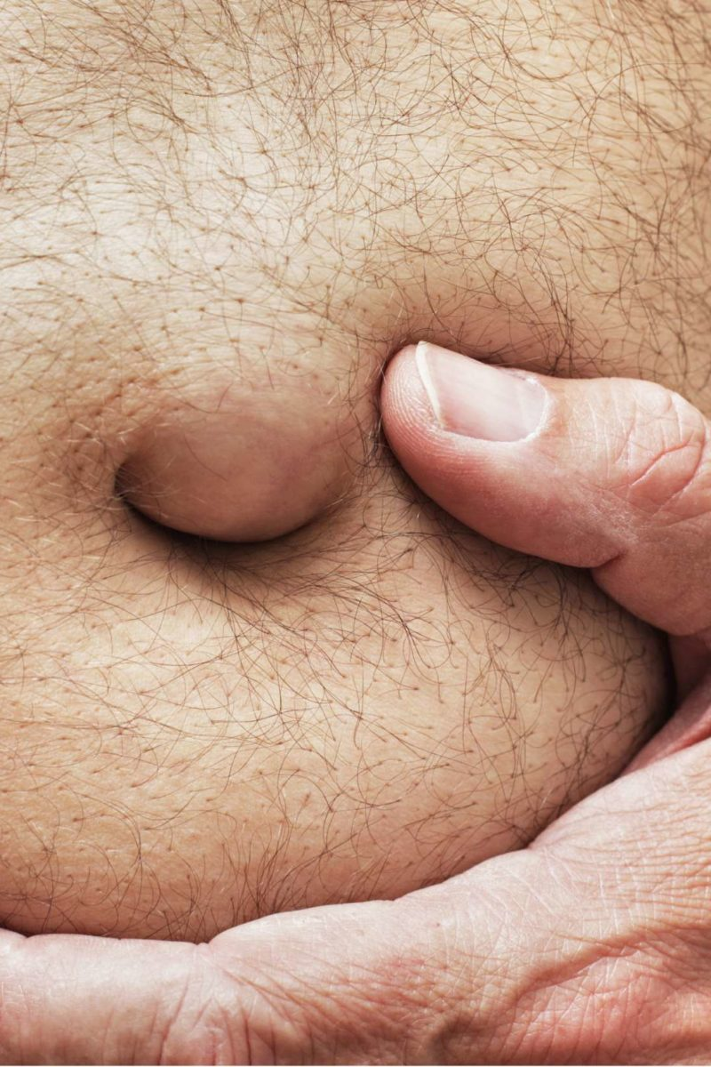 abdominal cancer nodules)