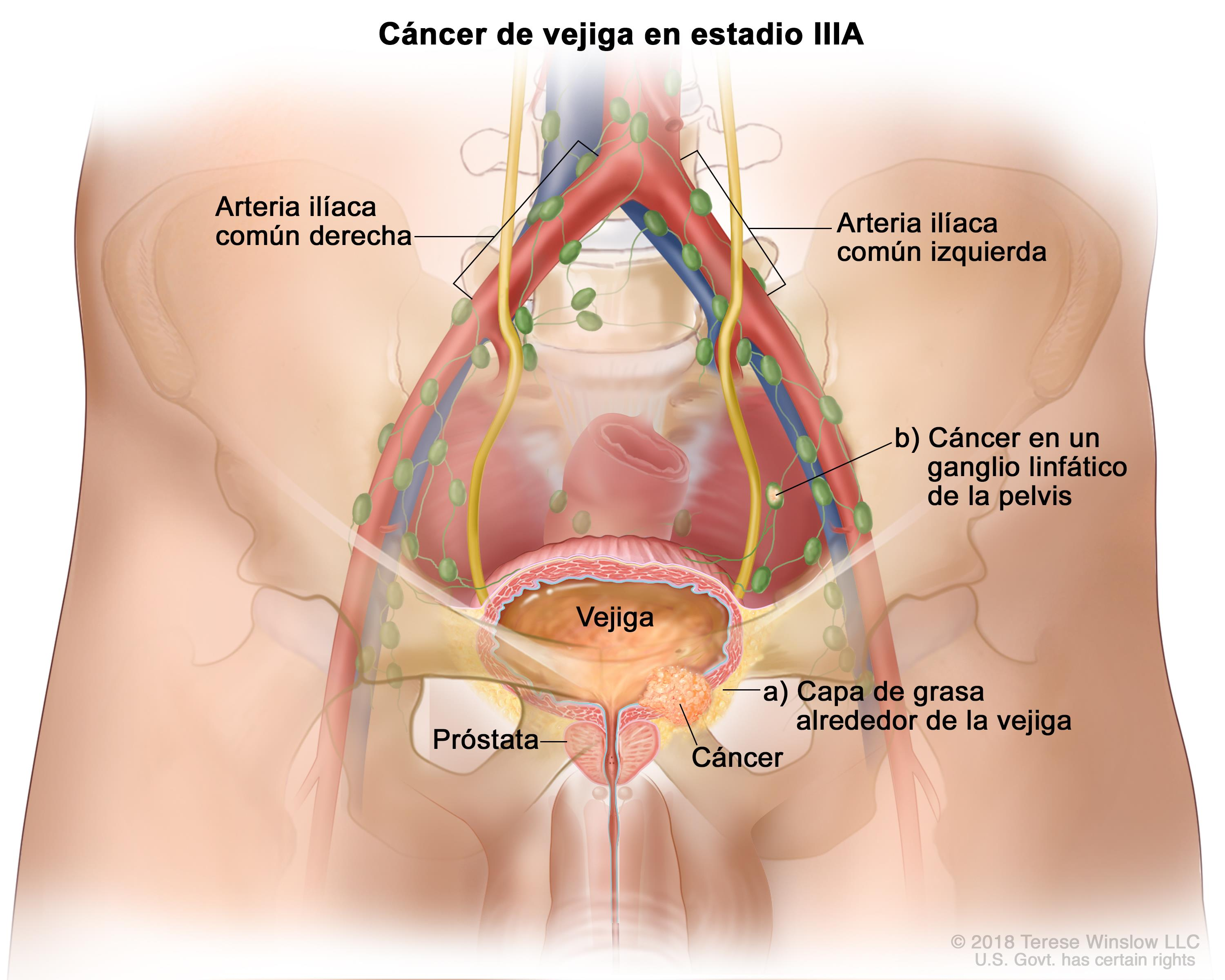 cancer prostata y vejiga)