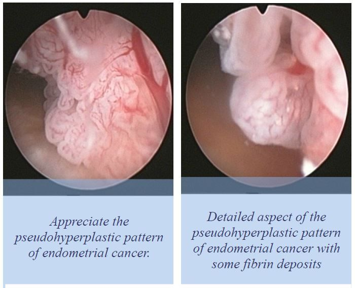 endometrial cancer in polyp)
