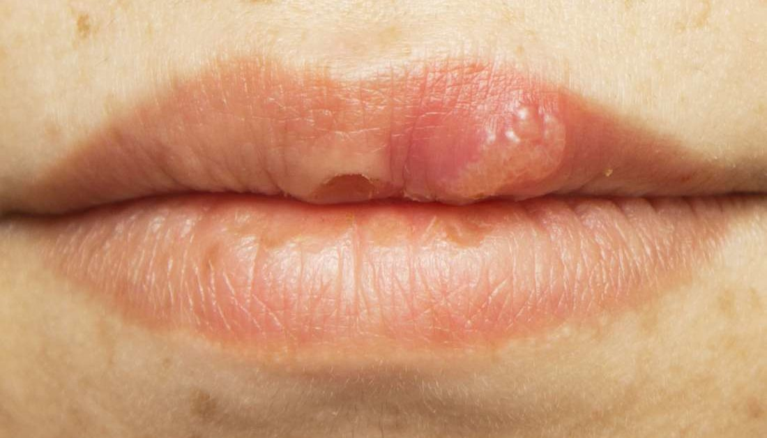 hpv mouth herpes)