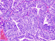 endometrial cancer endometrioid
