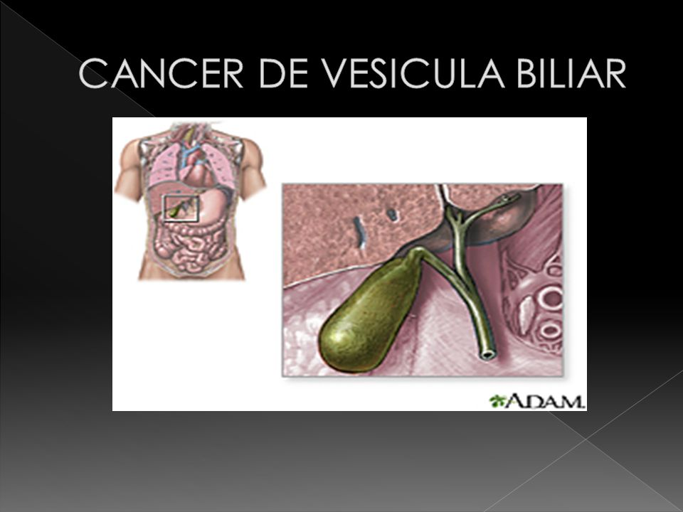 Cancer vesicula biliar metastasis