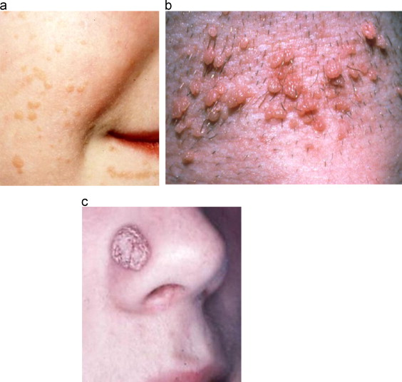 Hpv symptoms on face - eng2ro.ro