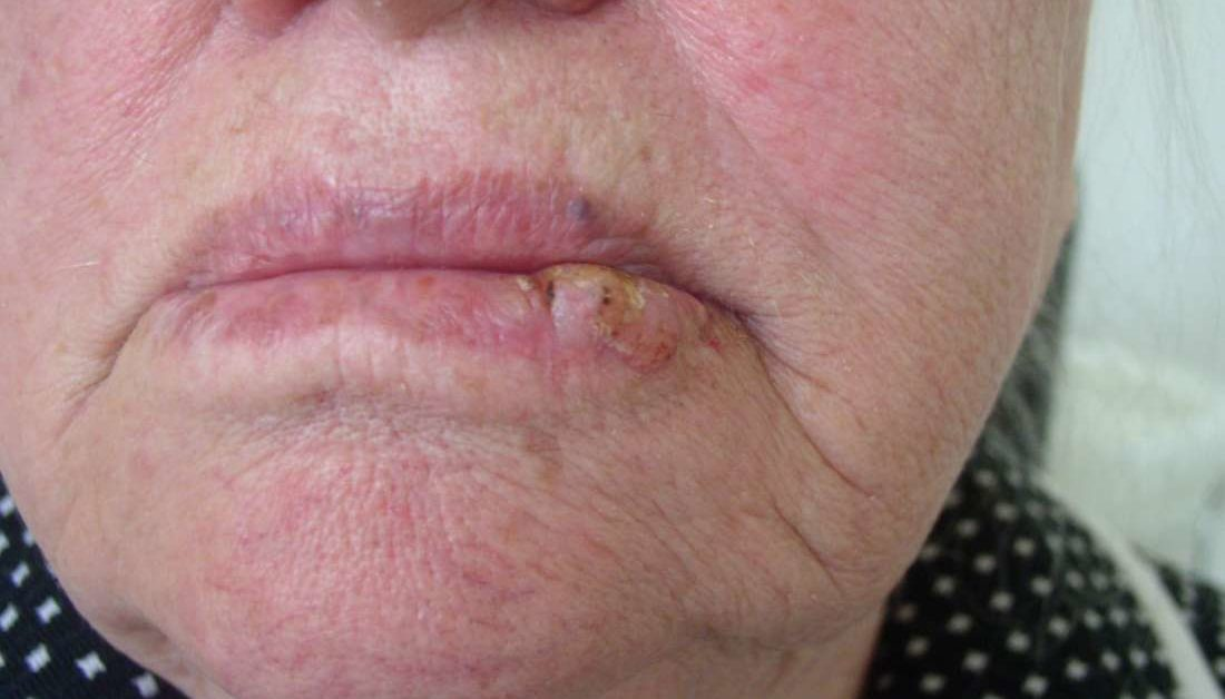 hpv lip swelling cancer gastric tnm