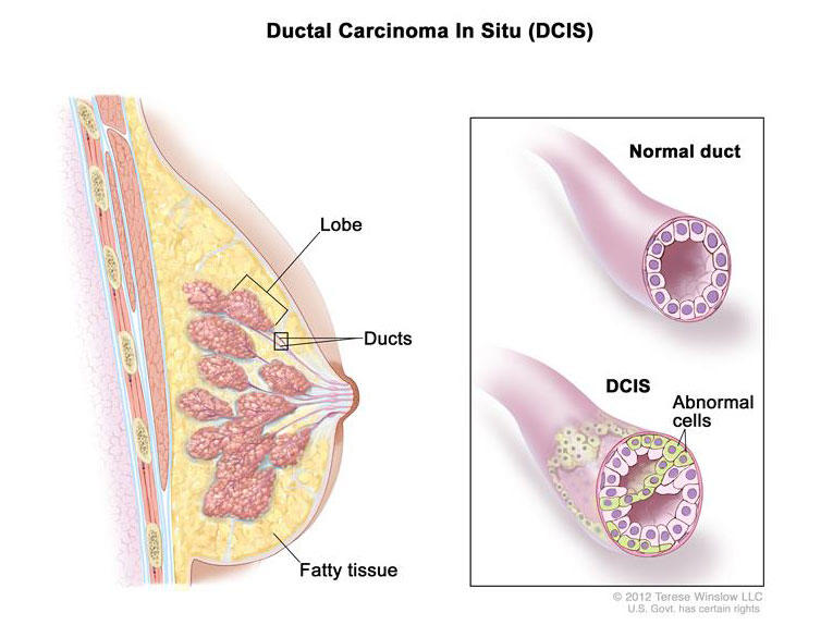 ductal papilloma link to cancer