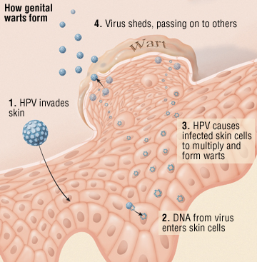 hpv virus how is it spread)