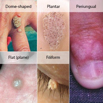 Warts on your hands and feet. Bump vena picior