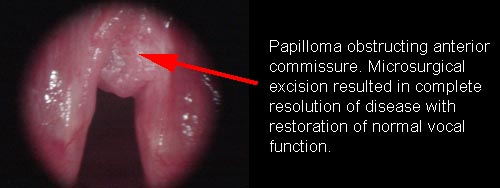 squamous papilloma vs wart