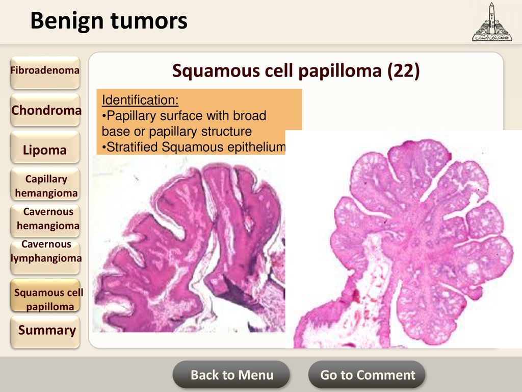 squamous cell papilloma slideshare)