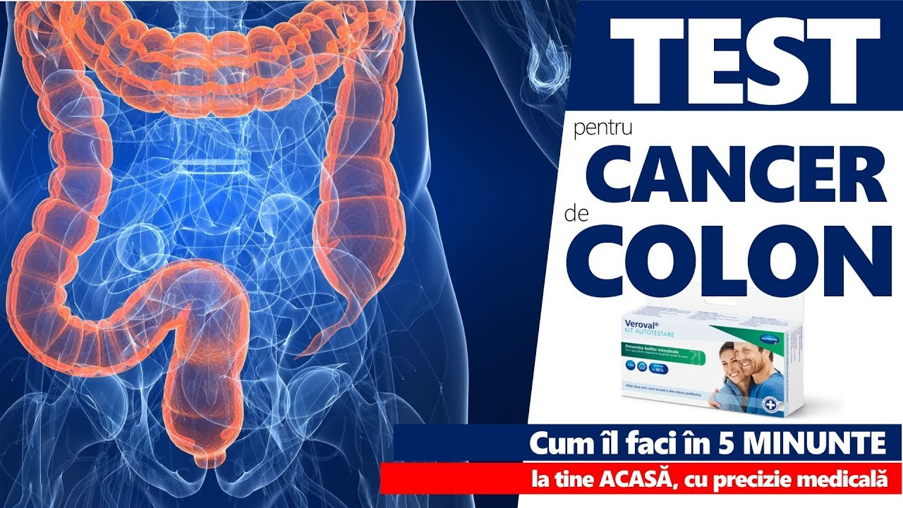 simptome cancer de colon la femei