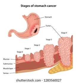 abdominal cancer tumours