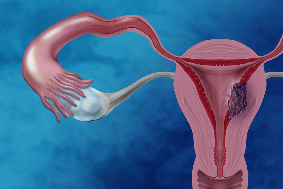 endometrial cancer blog)