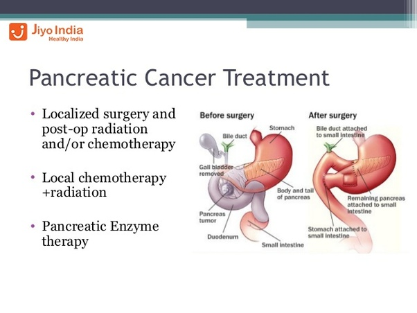 cancer pancreatic cure)