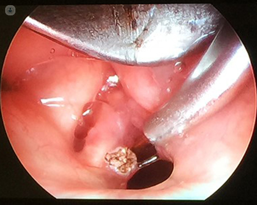 treatment for laryngeal papilloma
