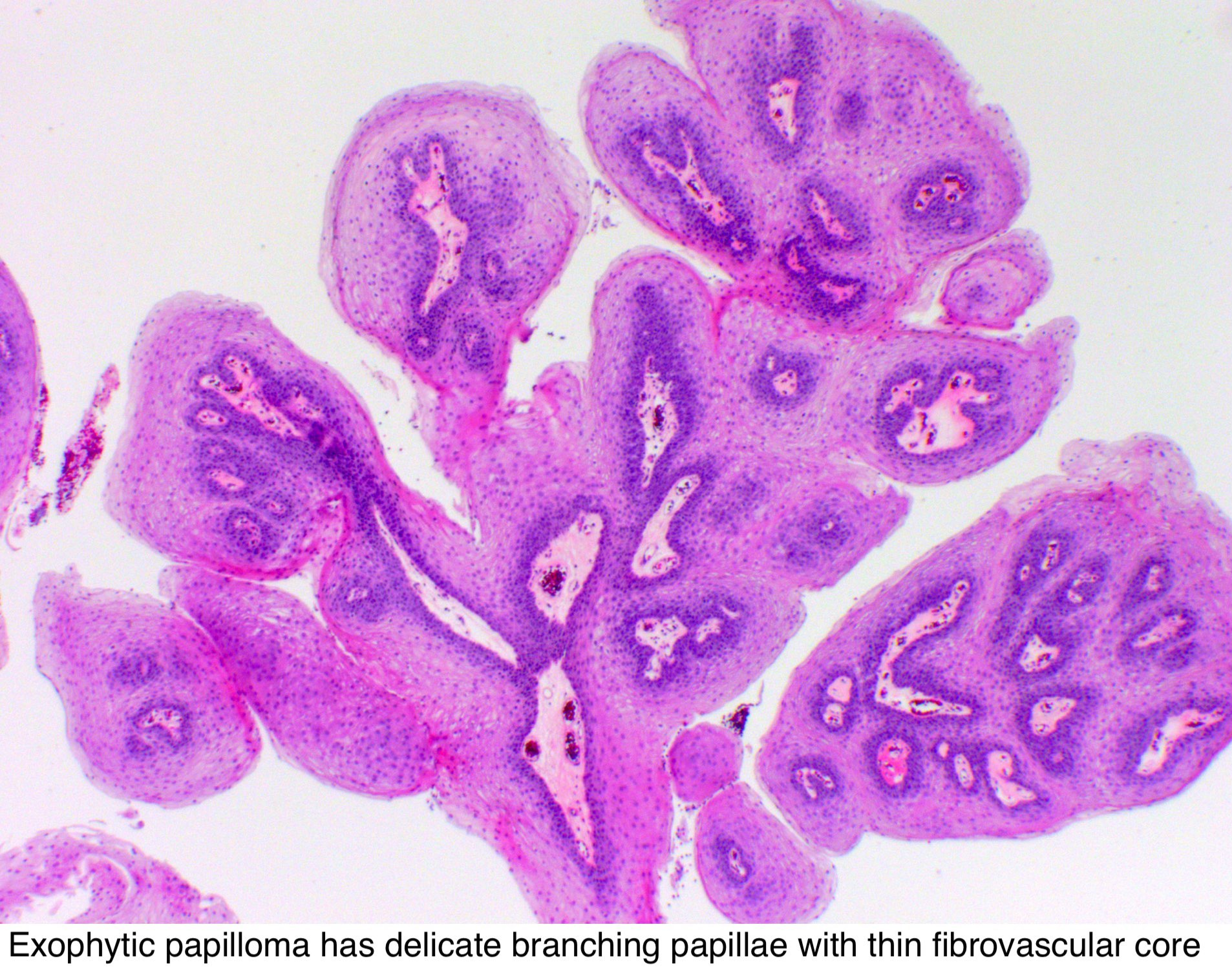 Squamous papilloma path outlines,