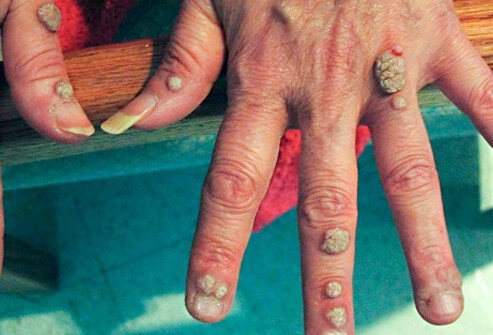 What does a wart virus look like, Cancer on tip of nipple