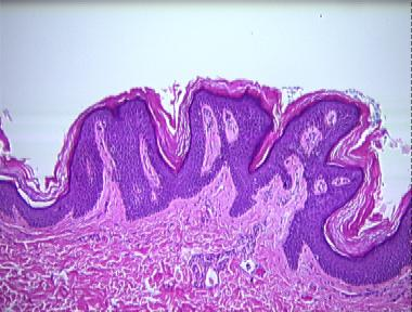papillomatosis skin pathology