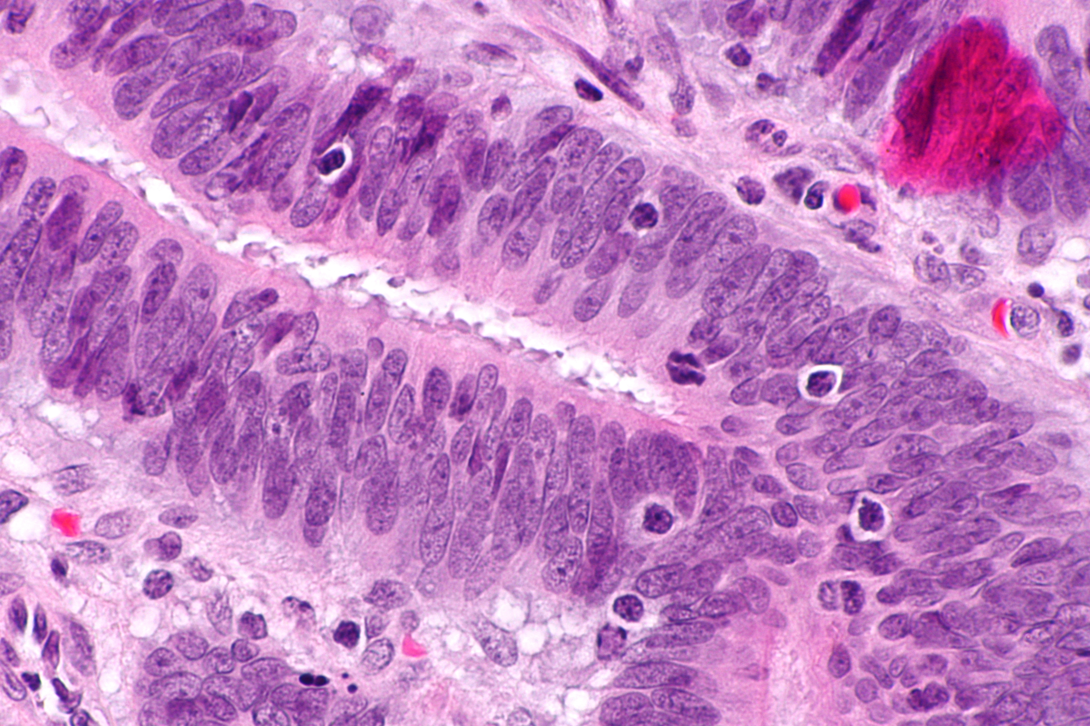 metastatic cancer of colon icd 10)