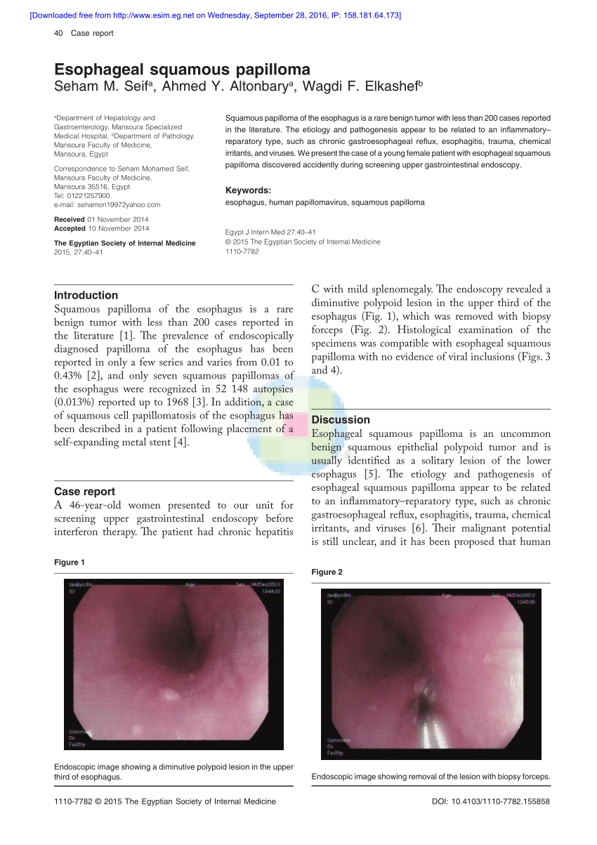 squamous papilloma in esophagus)