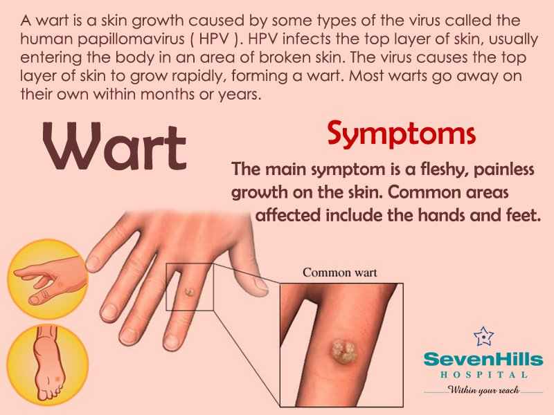 Warts on hands that wont go away