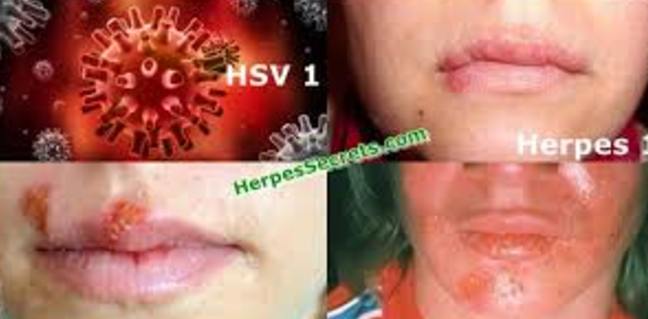 hpv virus herpes zoster