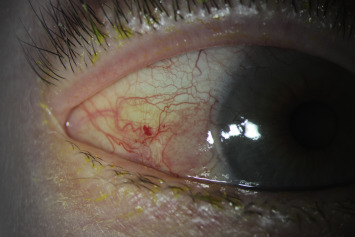 Conjunctival papilloma surgery,