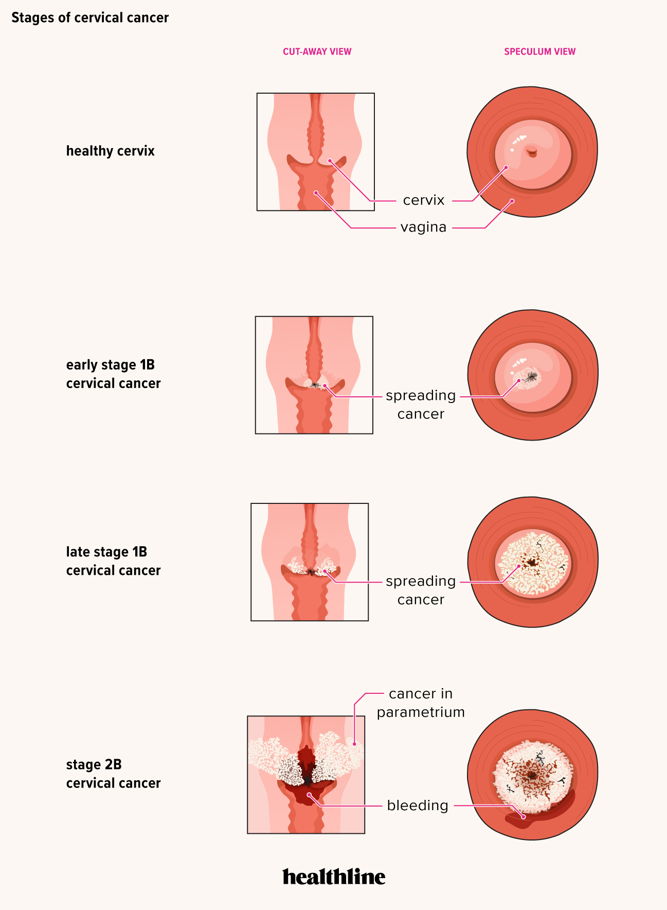 Hpv virus pregnancy. Cancer of renal