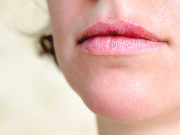 hpv lip swelling)