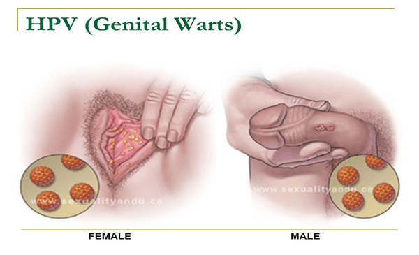 hpv genital wart cancer