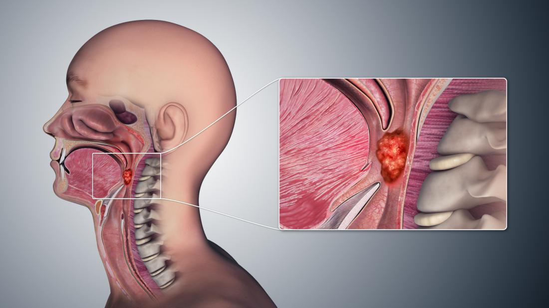 hpv and throat cancer signs and symptoms