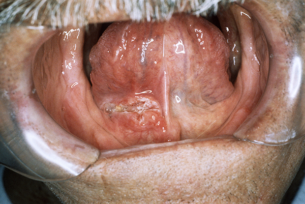 non hpv tongue cancer)