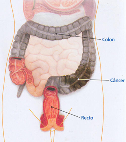 cancer de colon rectal sintomas)