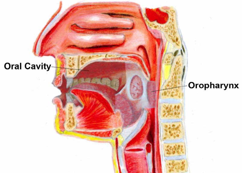 hpv- associated oropharyngeal cancer symptoms)