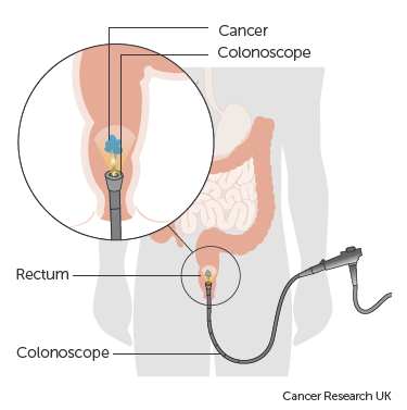 Rectal cancer vs fissure