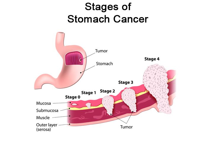 Abdominal cancer treatment