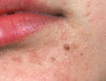 hpv facial warts intraductal papilloma removal recovery time
