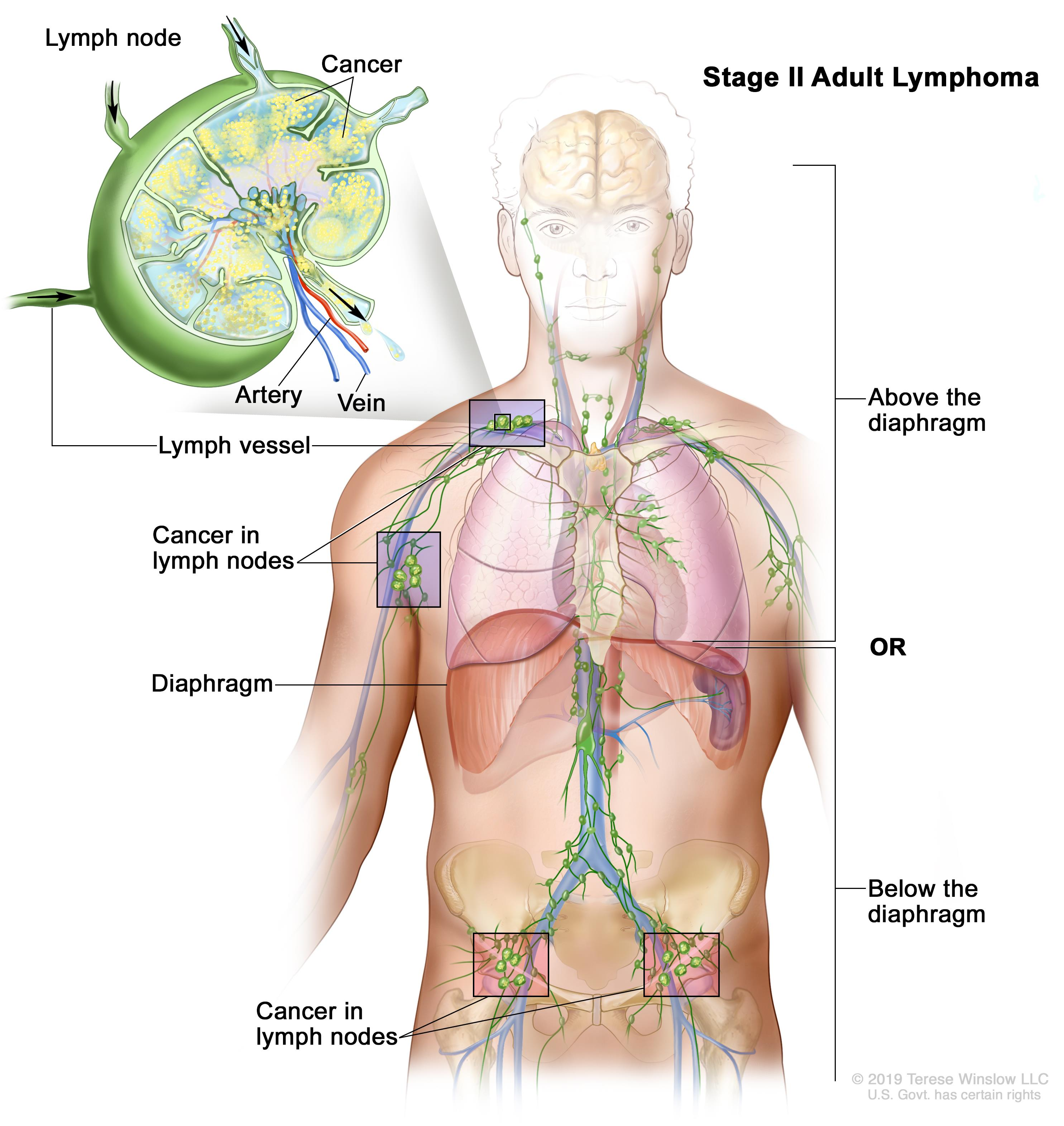 aggressive cancer in lymph nodes)