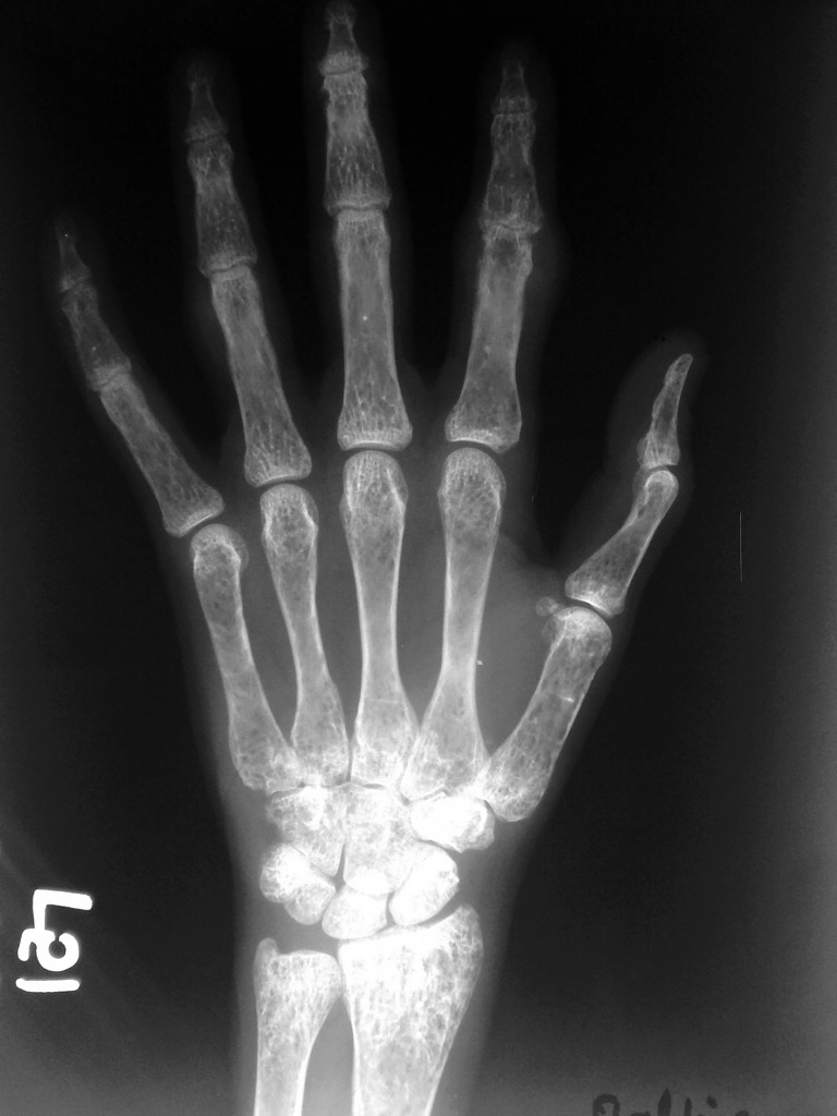 anemia x ray)
