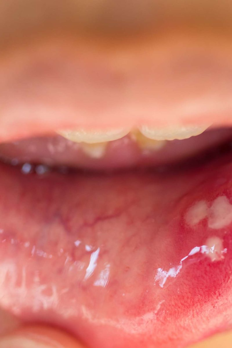 human papillomavirus infection saliva)