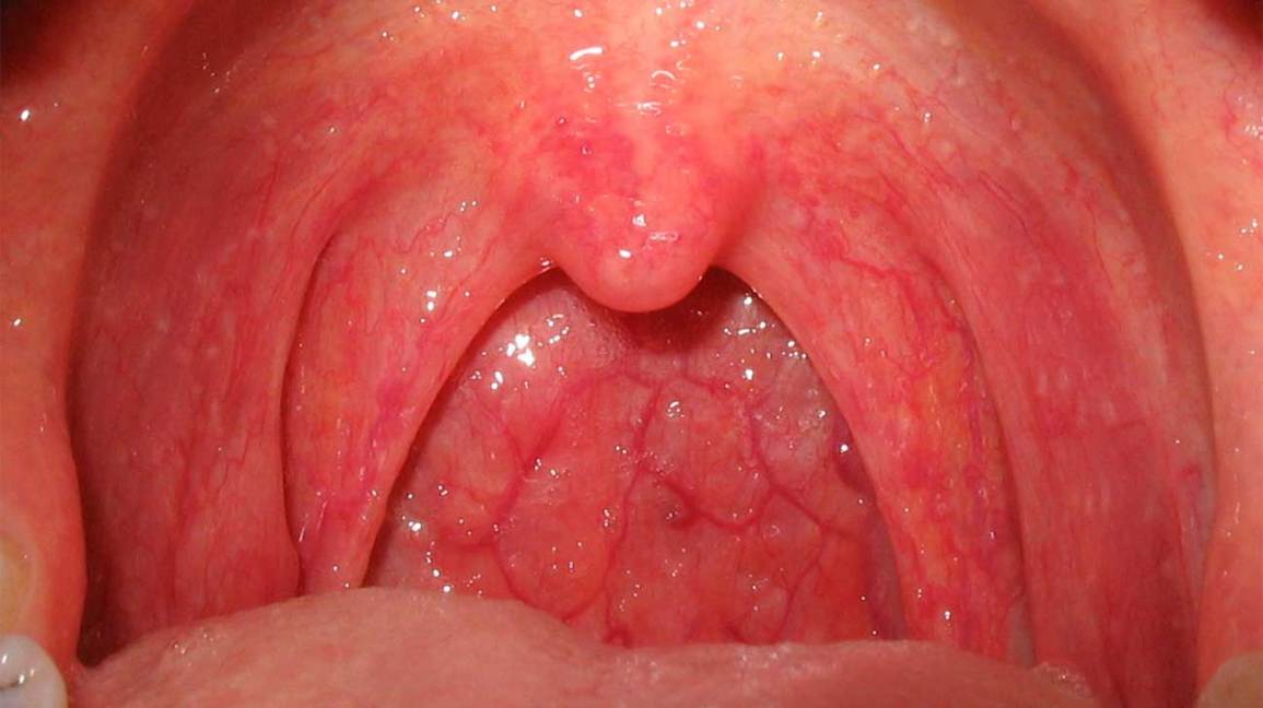 hpv throat cancer cure