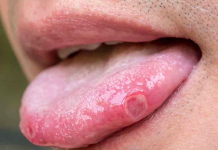 papilloma lesion in mouth