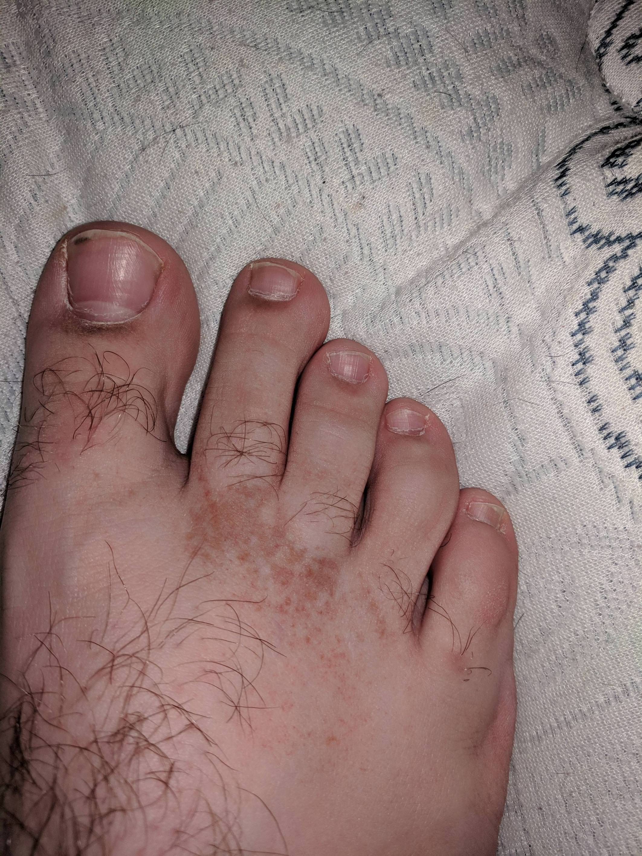 wart on foot itches)