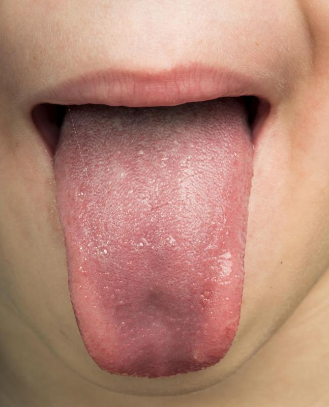 genital warts and pregnancy delivery