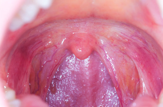 hpv virus on throat